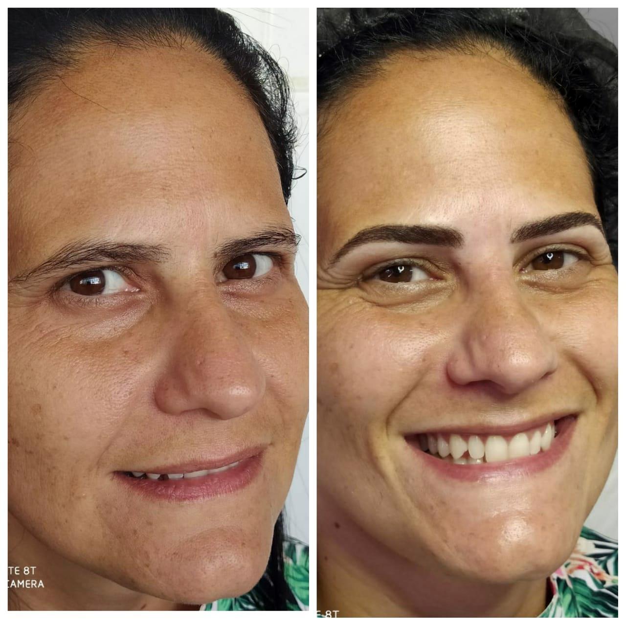 Espaço Prat`s Estética Facial e Micropigmentação